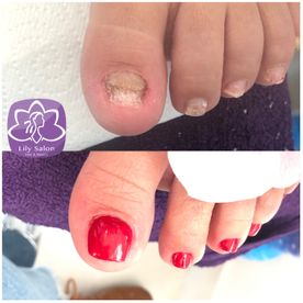 nail repair edgware north london nail near me
