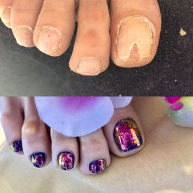 nail repair edgware north london